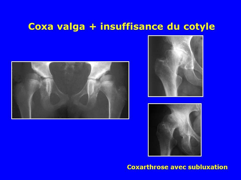Coxa valga + insuffisance du cotyle Coxarthrose avec subluxation
