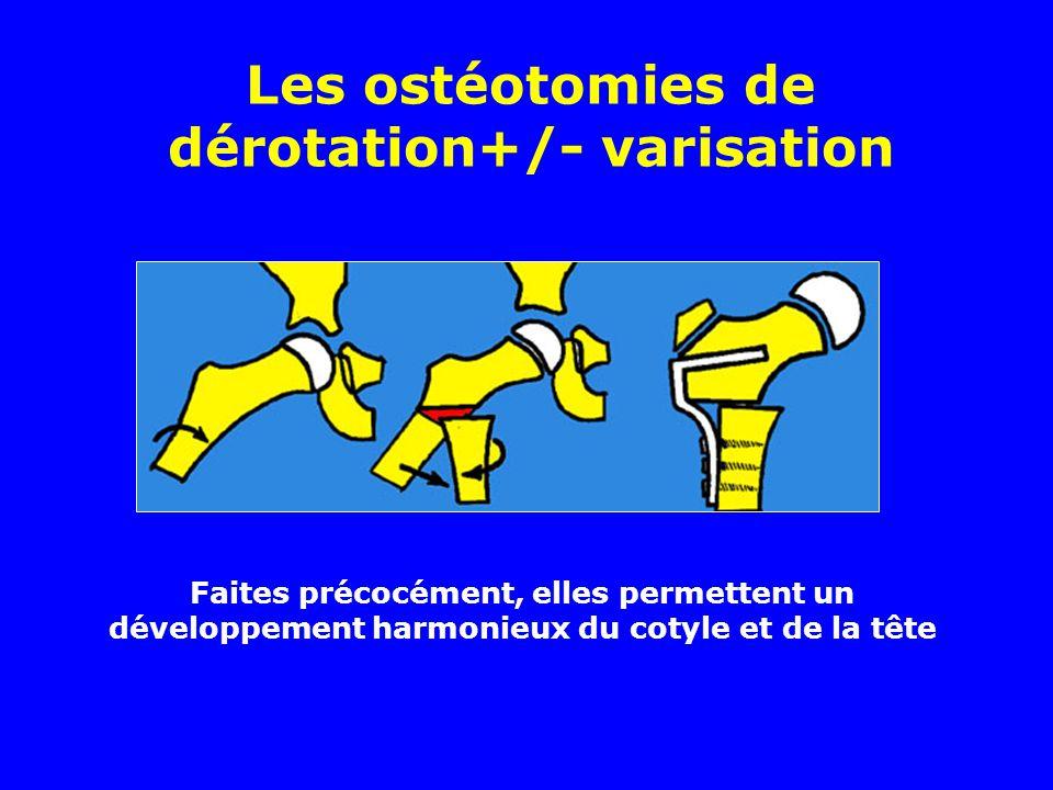 Les ostéotomies de dérotation+/- varisation Faites précocément, elles permettent un développement harmonieux du cotyle et de la tête