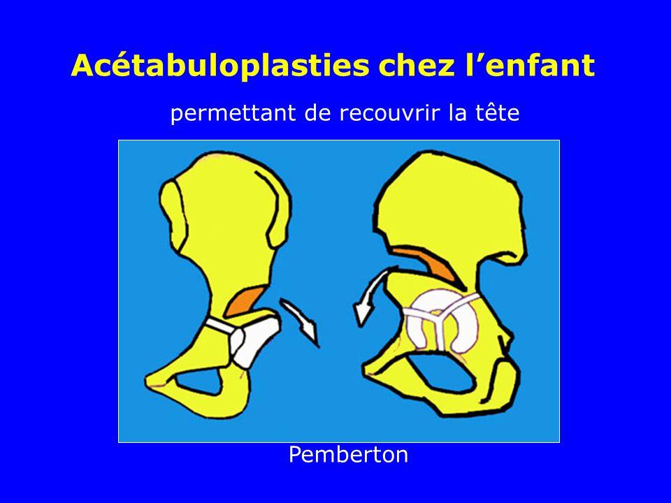 permettant de recouvrir la tête Pemberton Acétabuloplasties chez lenfant