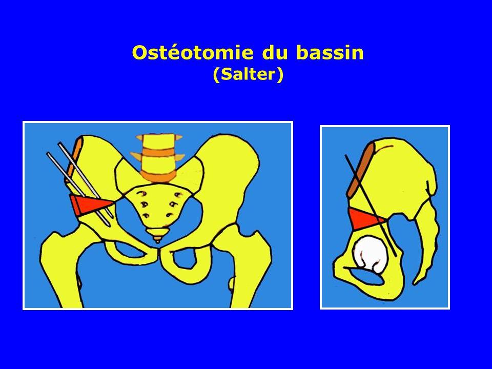 Ostéotomie du bassin (Salter)