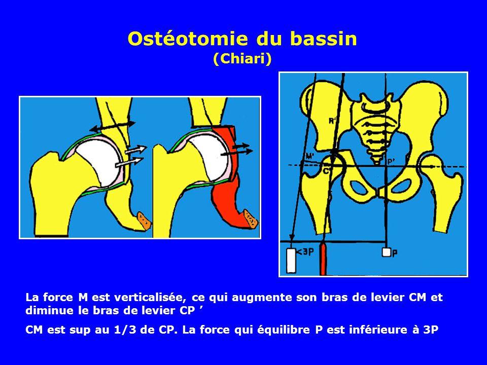 Ostéotomie du bassin (Chiari) Translation de la tête et couverture La force M est verticalisée, ce qui augmente son bras de levier CM et diminue le bras de levier CP CM est sup au 1/3 de CP.