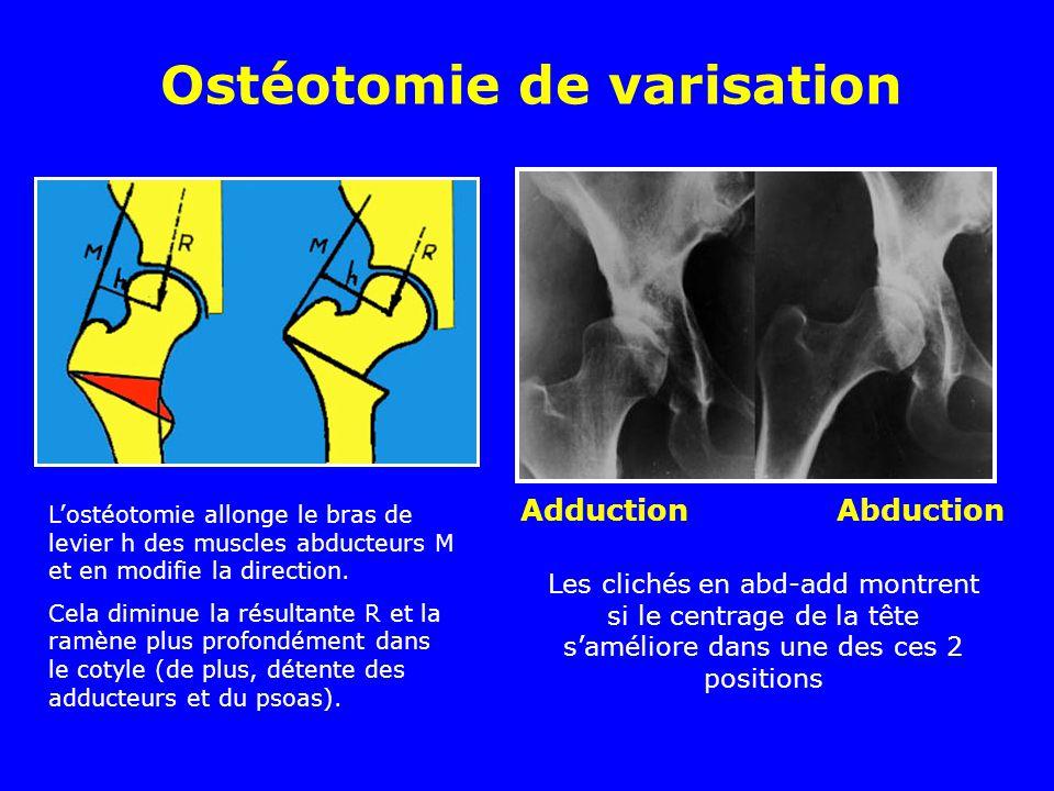 Ostéotomie de varisation Lostéotomie allonge le bras de levier h des muscles abducteurs M et en modifie la direction. Cela diminue la résultante R et