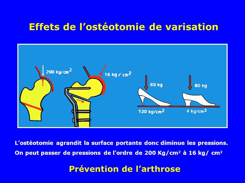 Effets de lostéotomie de varisation Lostéotomie agrandit la surface portante donc diminue les pressions.