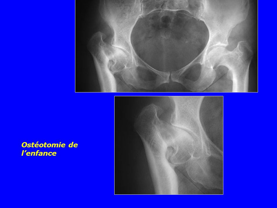 Ostéotomie de lenfance