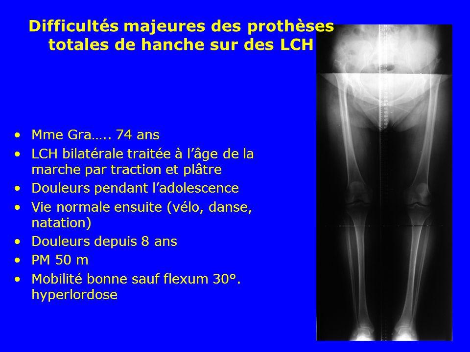 Mme Gra….. 74 ans LCH bilatérale traitée à lâge de la marche par traction et plâtre Douleurs pendant ladolescence Vie normale ensuite (vélo, danse, na