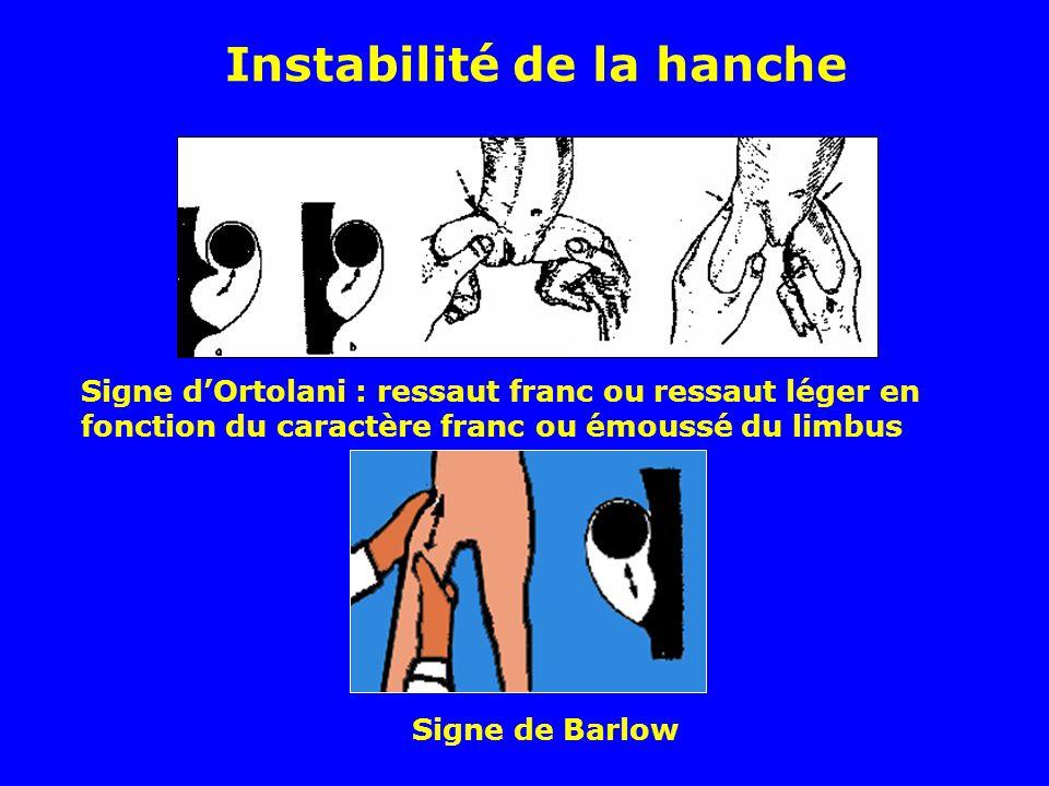 Signe dOrtolani : ressaut franc ou ressaut léger en fonction du caractère franc ou émoussé du limbus Signe de Barlow Instabilité de la hanche
