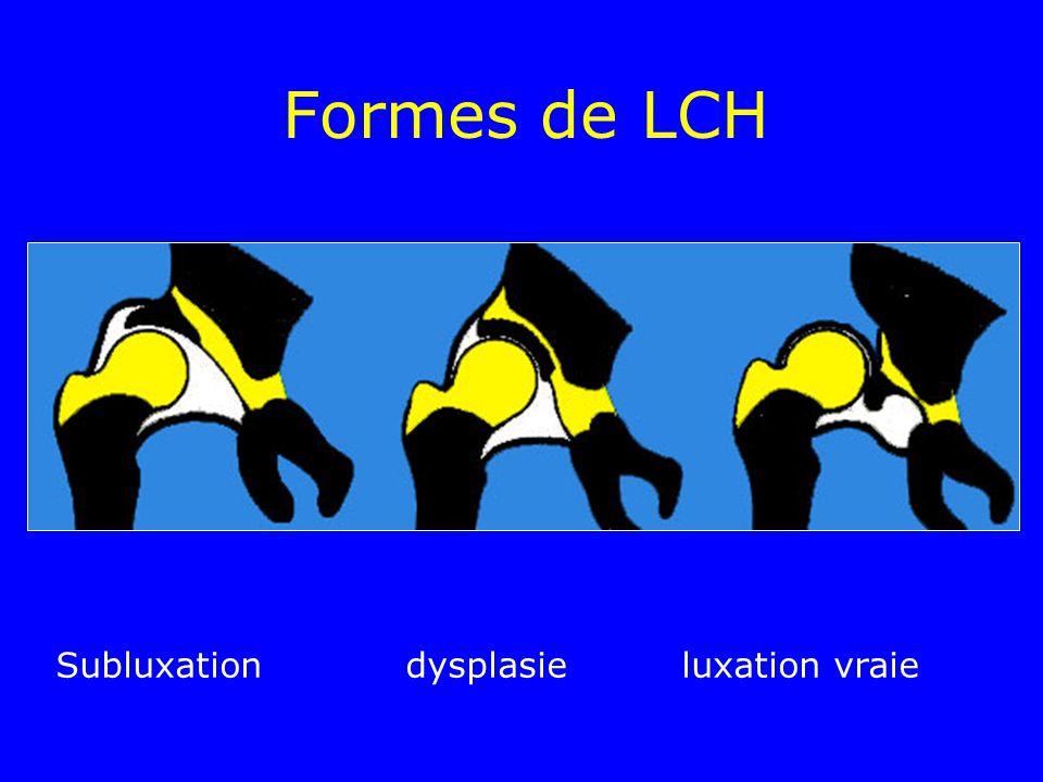 Formes de LCH Subluxation dysplasieluxation vraie