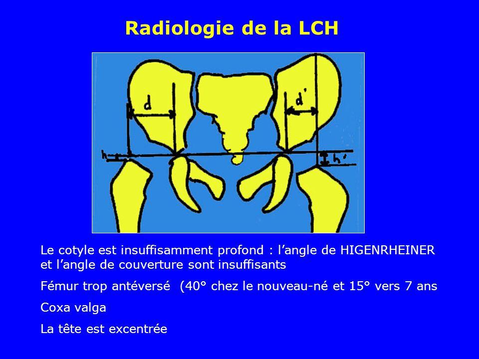 Le cotyle est insuffisamment profond : langle de HIGENRHEINER (H) et langle de couverture sont insuffisants Fémur trop antéversé Coxa valga La tête est excentrée (dans le quadrant supéro externe (B) Radiologie de la LCH