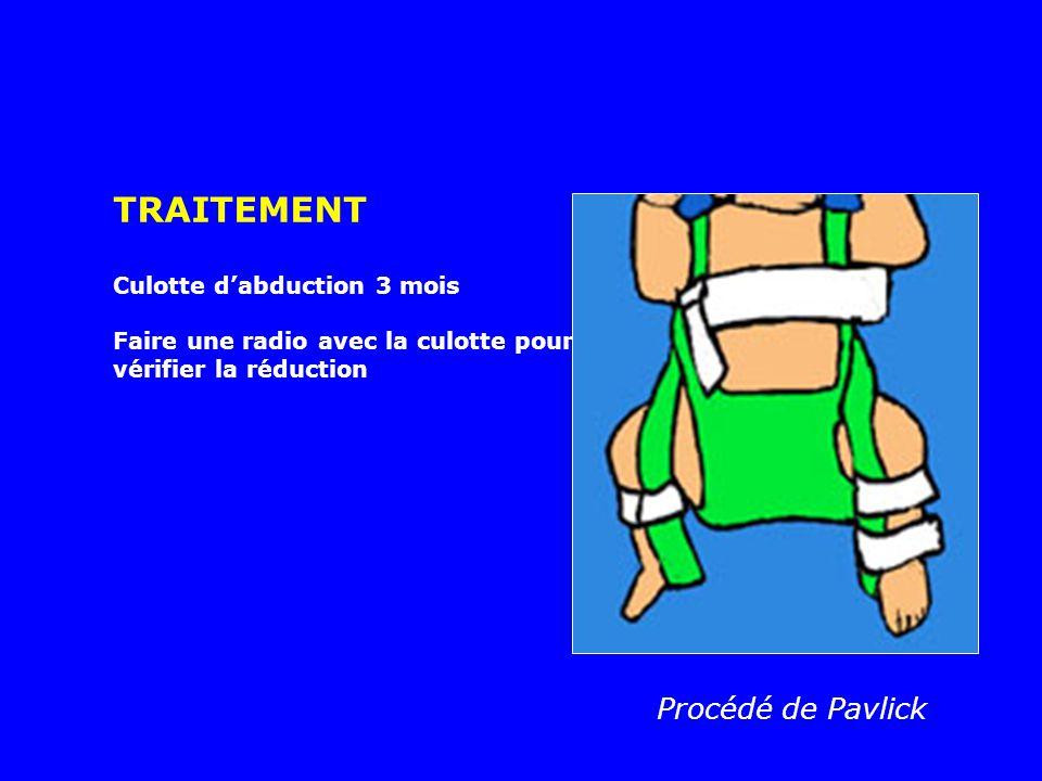 Ostéotomie du fémur + butée