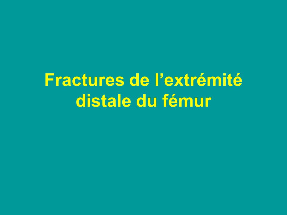 Classification des fractures de lextr inf du fémur Supra condyliennes : 45% Supra et intercondyliennes : 35% Unicondyliennes 20%