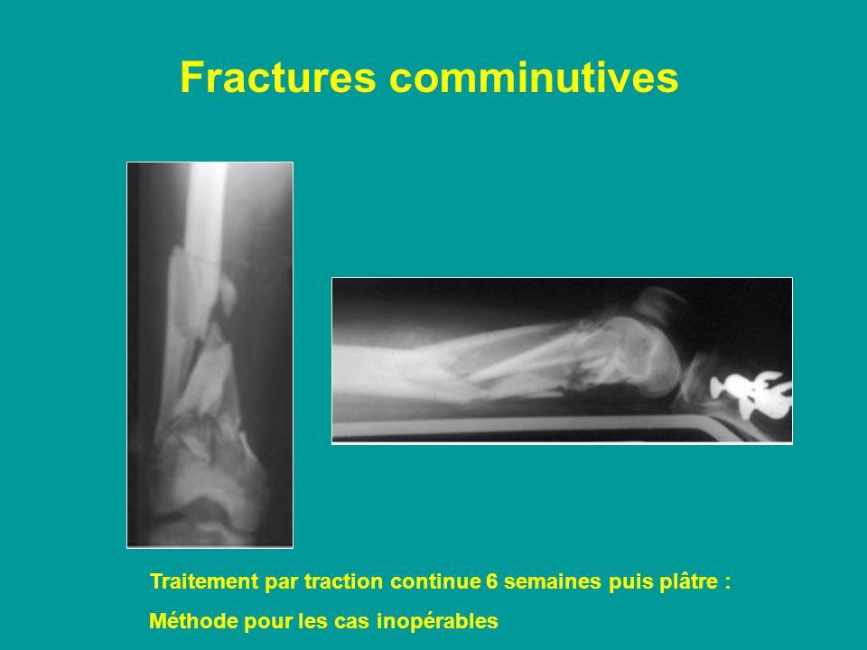 Fractures comminutives Traitement par traction continue 6 semaines puis plâtre : Méthode pour les cas inopérables
