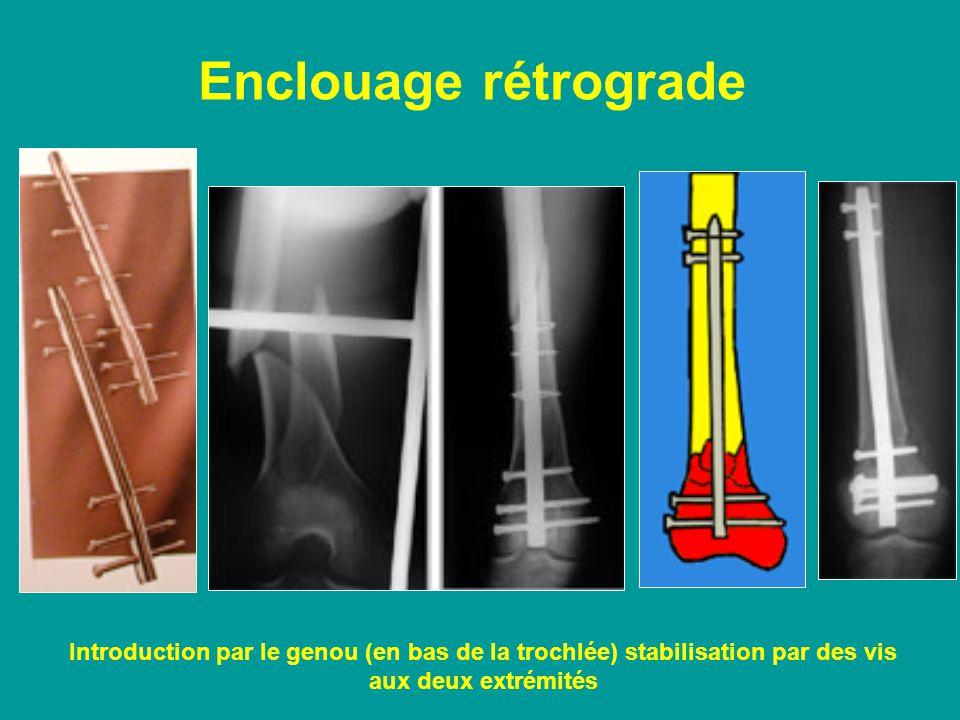 Enclouage rétrograde Introduction par le genou (en bas de la trochlée) stabilisation par des vis aux deux extrémités