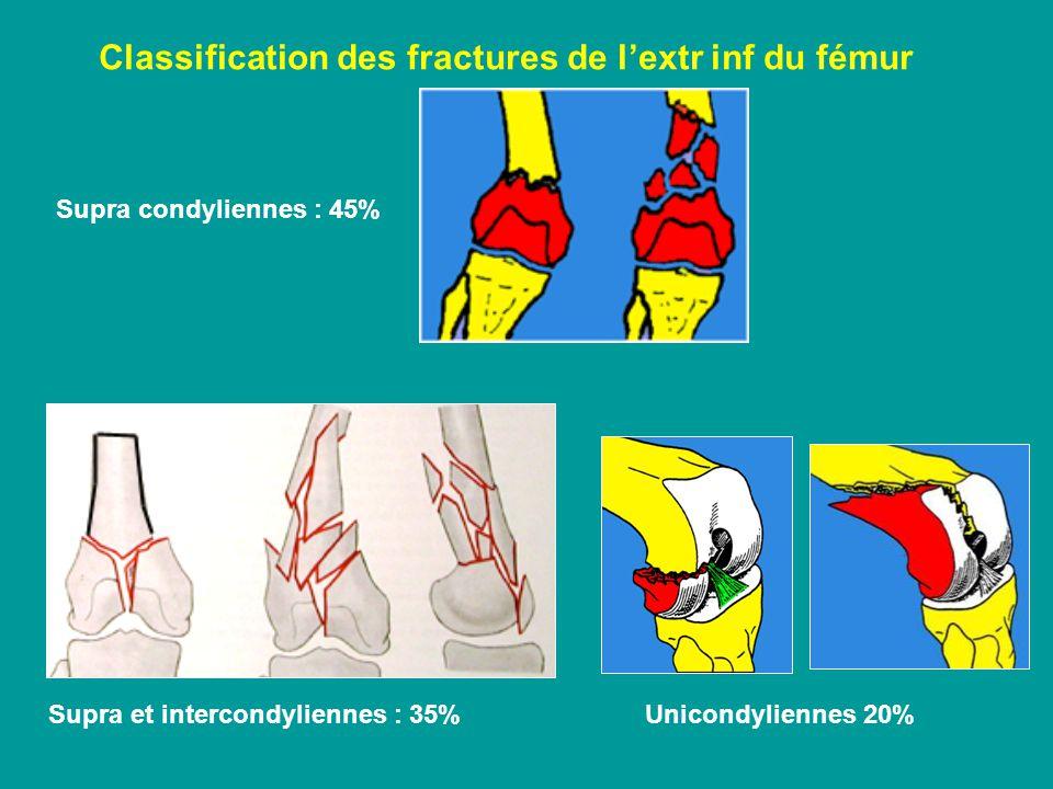Classification des fractures de lextr inf du fémur Supra condyliennes : 45% Supra et intercondyliennes : 35% Unicondyliennes 20%