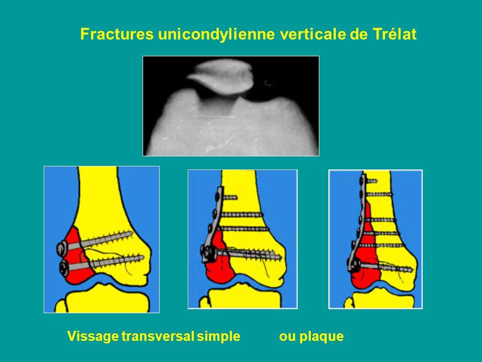 Fractures unicondylienne verticale de Trélat Vissage transversal simple ou plaque