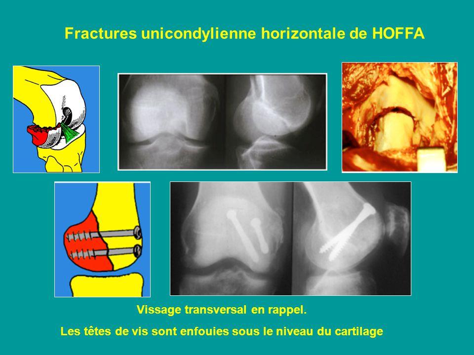 Fractures unicondylienne horizontale de HOFFA Vissage transversal en rappel.