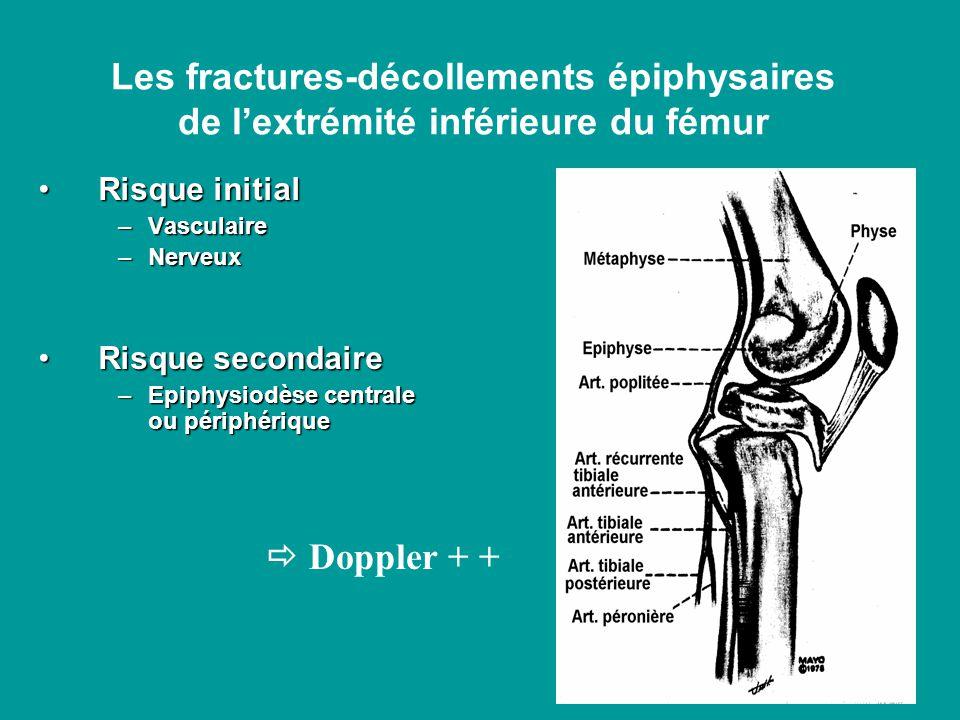 Risque initialRisque initial –Vasculaire –Nerveux Risque secondaireRisque secondaire –Epiphysiodèse centrale ou périphérique Les fractures-décollements épiphysaires de lextrémité inférieure du fémur Doppler + +