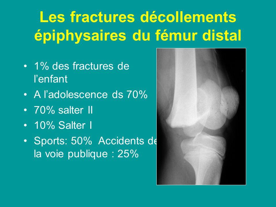 Les fractures décollements épiphysaires du fémur distal 1% des fractures de lenfant A ladolescence ds 70% 70% salter II 10% Salter I Sports: 50% Accidents de la voie publique : 25%