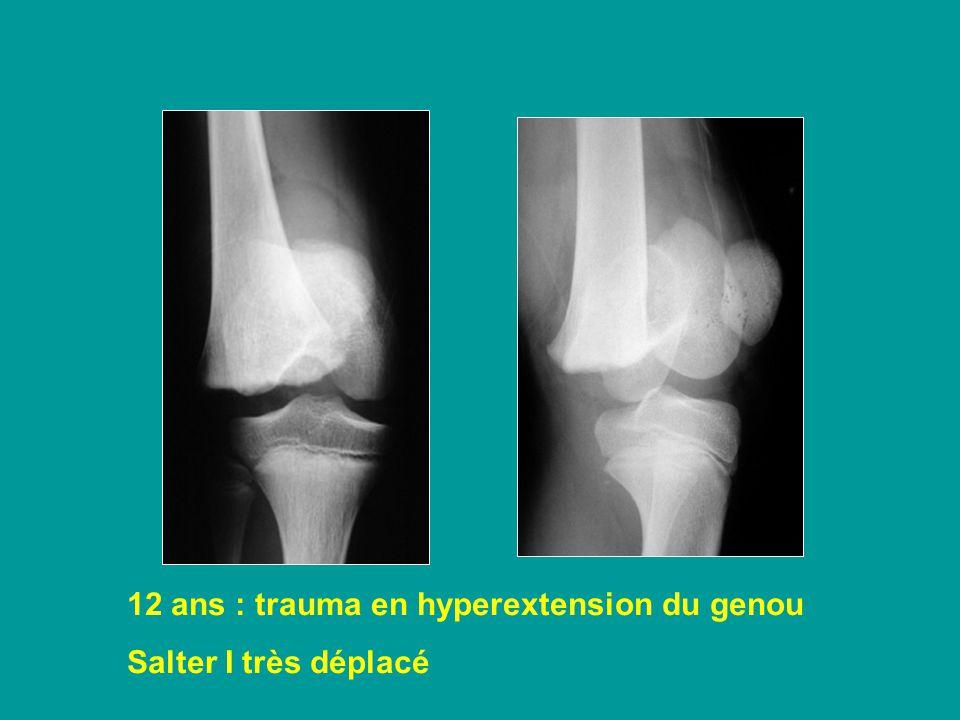 12 ans : trauma en hyperextension du genou Salter I très déplacé