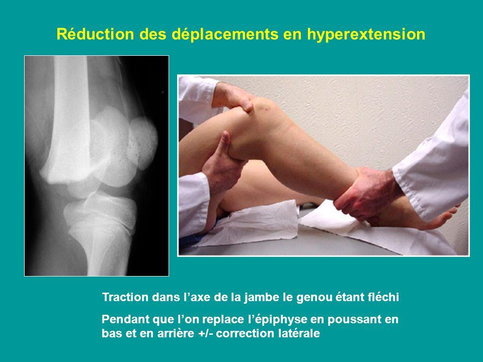 Réduction des déplacements en hyperextension Traction dans laxe de la jambe le genou étant fléchi Pendant que lon replace lépiphyse en poussant en bas et en arrière +/- correction latérale