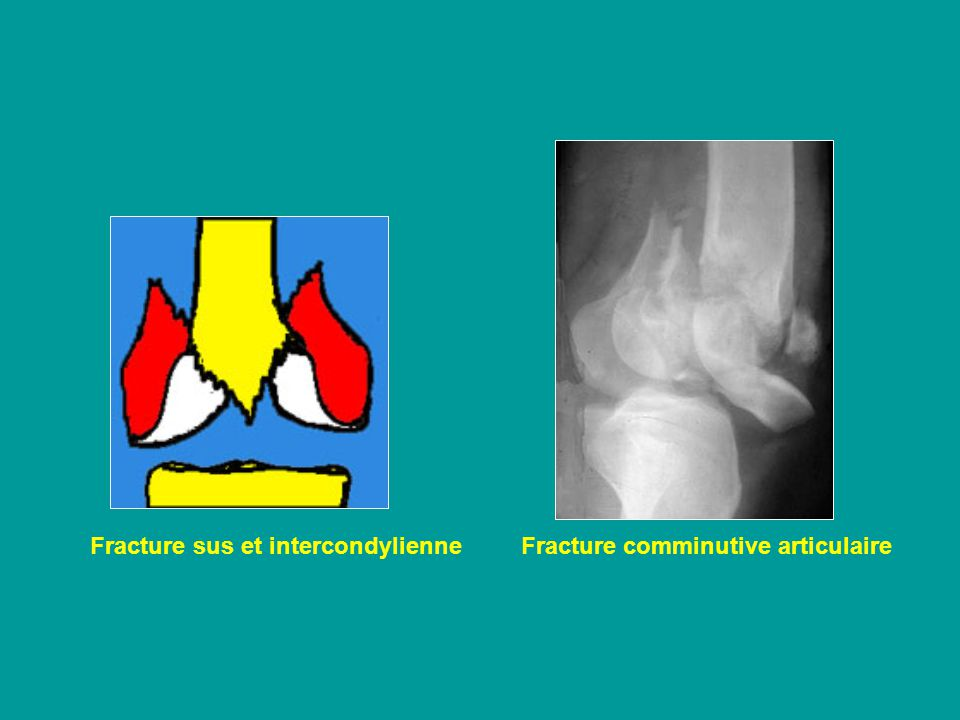 Fracture sus et intercondylienne Fracture comminutive articulaire
