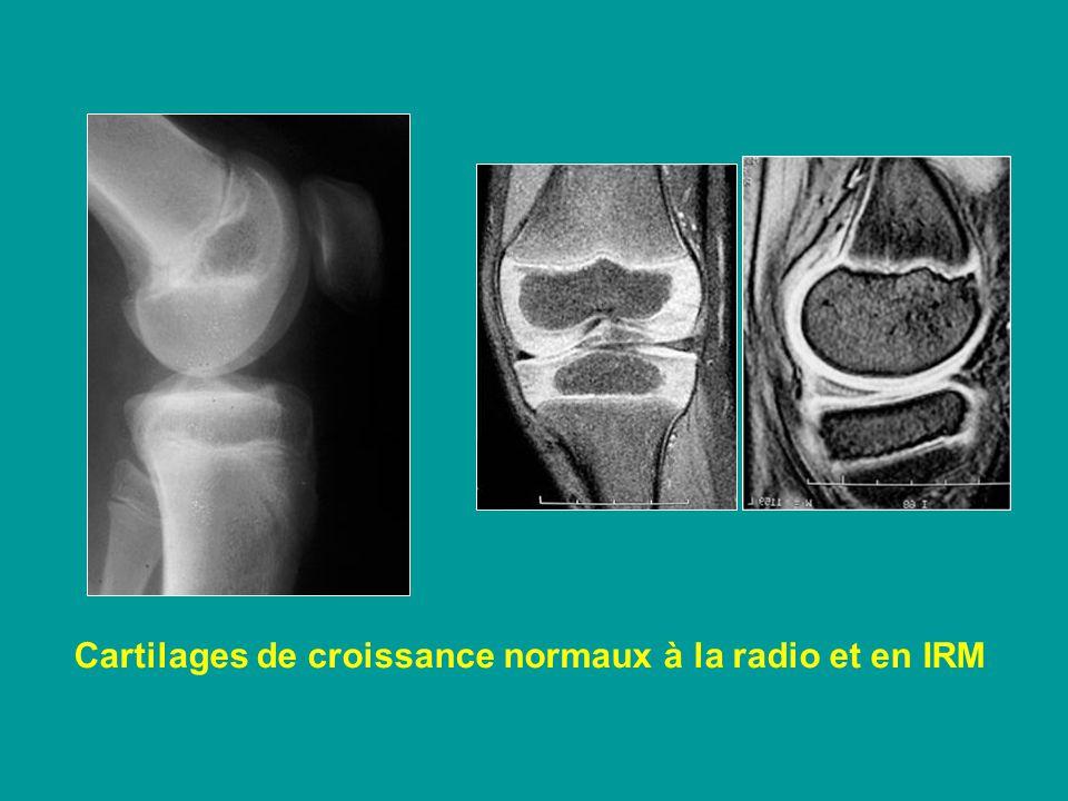 Cartilages de croissance normaux à la radio et en IRM