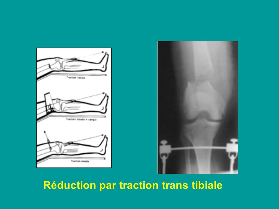 Réduction par traction trans tibiale