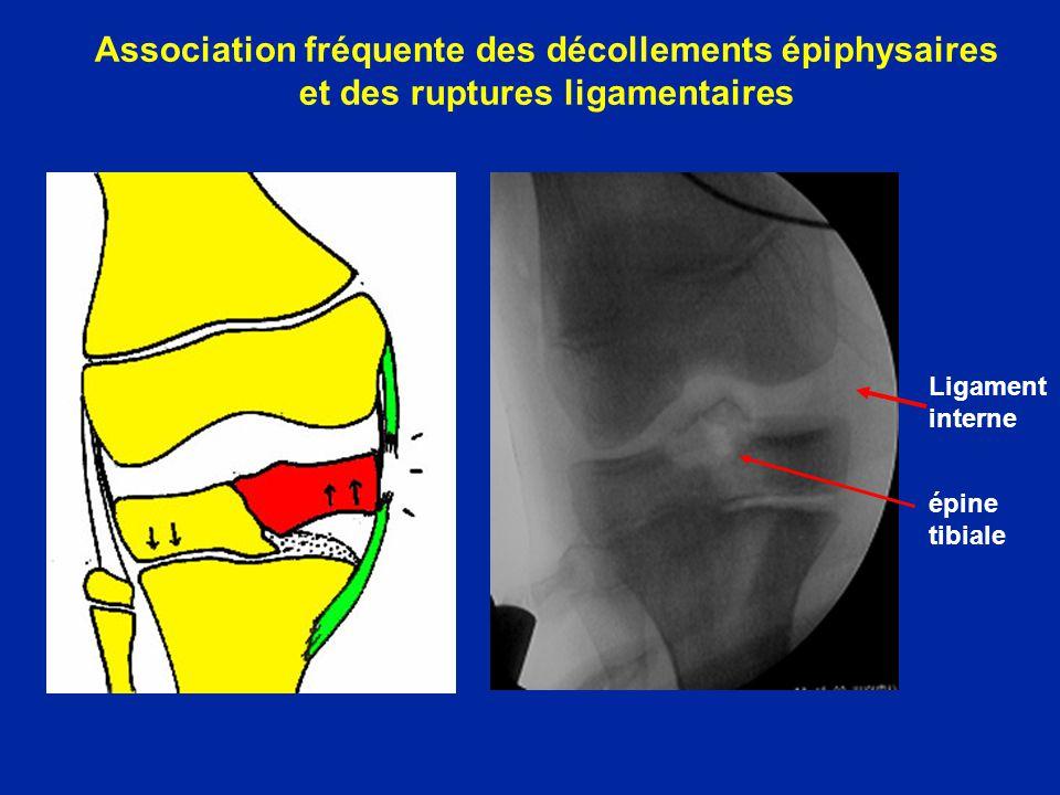 Rupture du LCA Torsion majorité daccidents Sportifs >> AVP Ski en France Foot et Rugby UK Foot Am US Douleur Sensation de rupture Sensation de « patte folle » Hémarthrose inconstante présente dans 18 % des traumatismes de lenfant : 1/3 lésions ligamentaires 1/3 lésions fémoro-patellaires 1/3 lésions méniscales