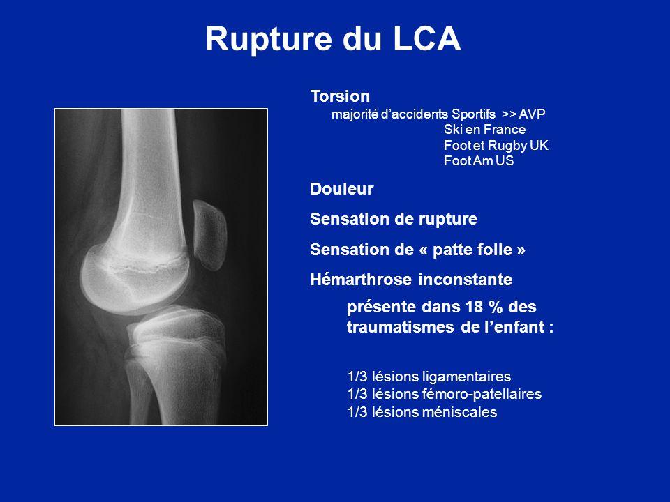 Rupture du LCA EXAMEN Hémarthrose inconstante Points douloureux Tiroir antérieur (Trillat - Lachman) Ressaut dynamique Laxité périphérique Arthromètre KT-1000 Radio IRM