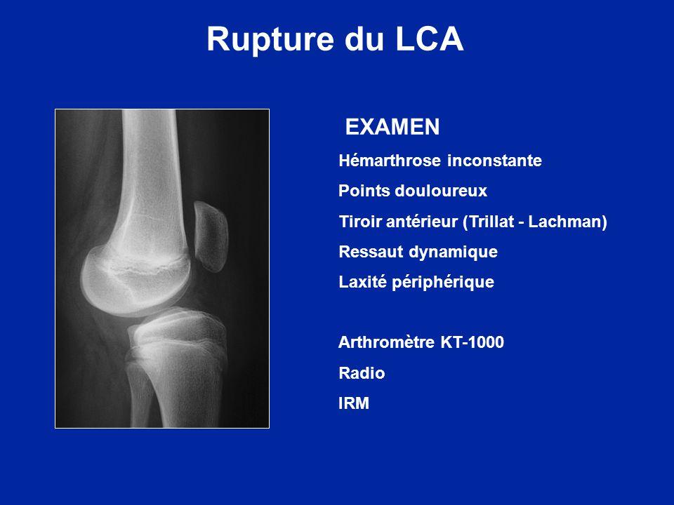 Le pronostic est lié à la maturité osseuse (fin de croissance du genou) La fermeture des cartilages de croissance est centrifuge La soudure de la tubérosité tibiale ant.