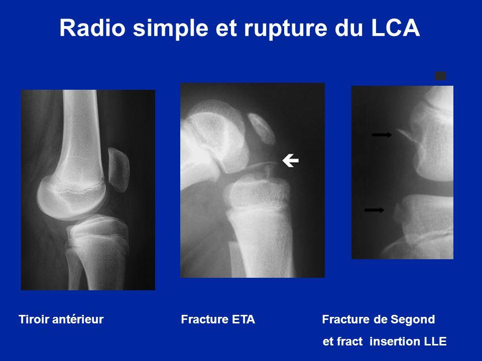 3 signes de rupture du LCA en IRM - Solution de continuité sur le LCA - Signal IRM anormal - Angle du LCA avec la ligne de Blumensaat >10° autres signes à rechercher : - Contusions condyle latérale - Translation tibiale antérieure - Angulation du LCP < 115° IRM et rupture du LCA