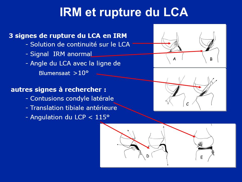 Traitement orthopédique En extension complète sous AG : La réduction est obtenue par lappui sur le toit de léchancrure Plâtre en extension Si réduction imparfaite : chirurgie Type 2