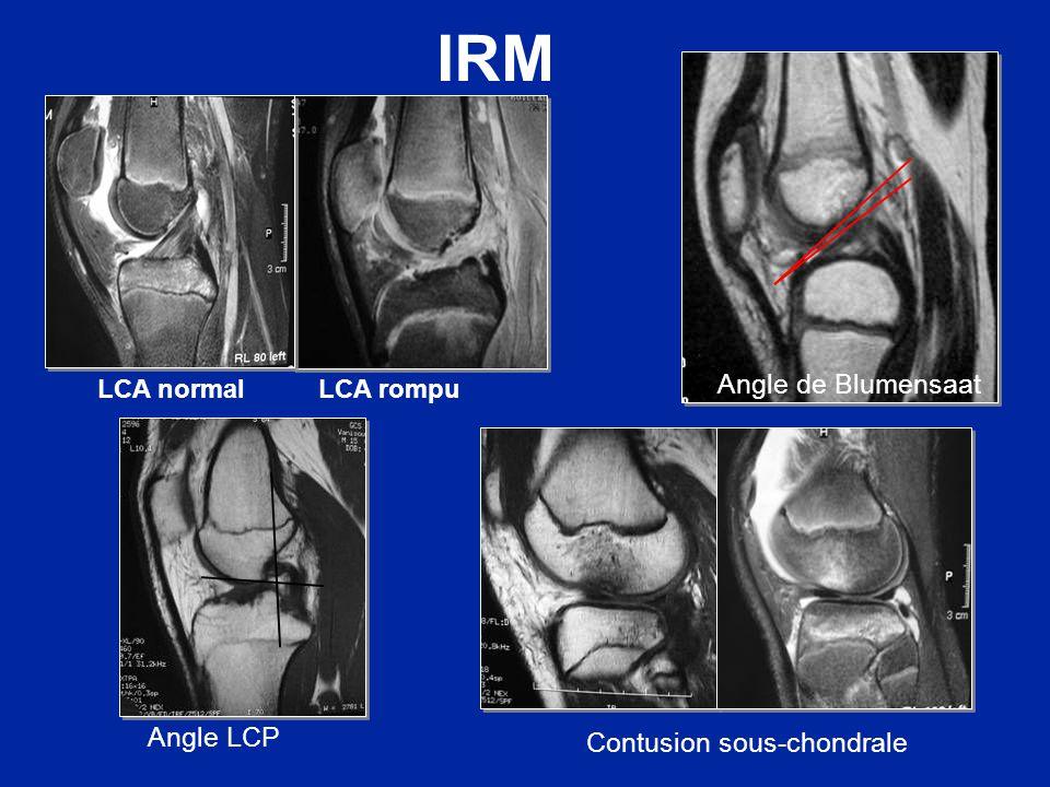 Type I Type II Type III Type IV Classification de Meyers et Mc Keever Arrachement de linsertion osseuse tibiale du LCA 8 fois sur 10, avant 12 ans