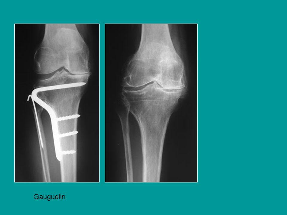 Déformation osseuse + laxité une prothèse charnière est indiquée Cal vicieux au dessus dune PTG déjà changée 2 fois + Laxité latérale La forme particulière de los impose une ostéotomie 2ème cas