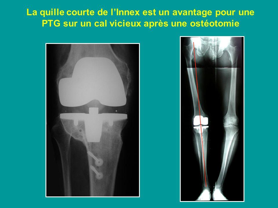 La quille courte de lInnex est un avantage pour une PTG sur un cal vicieux après une ostéotomie