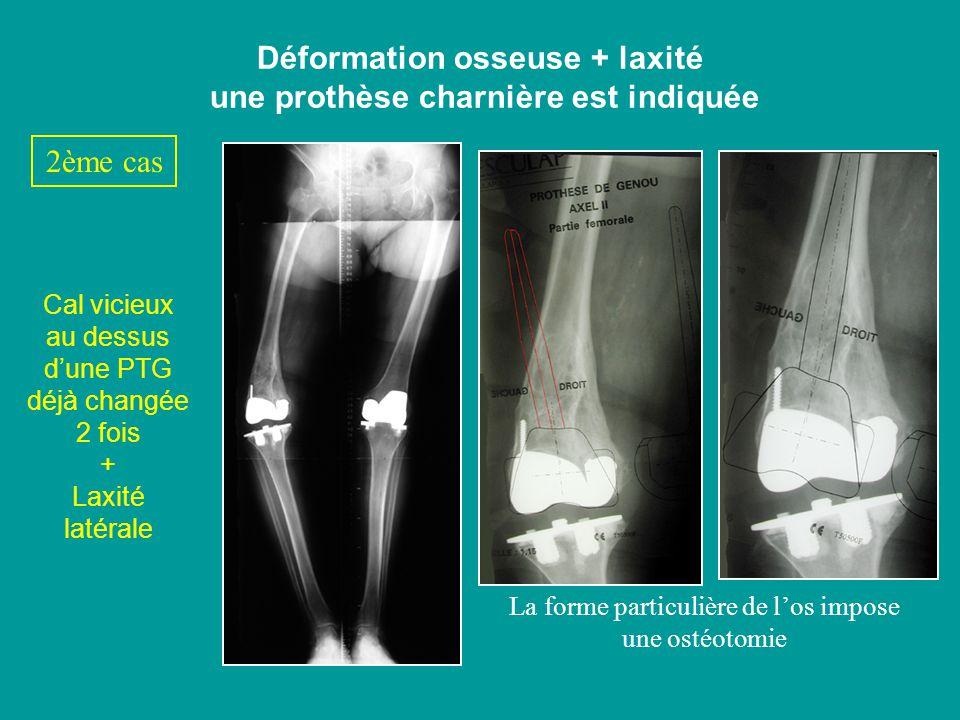 Déformation osseuse + laxité une prothèse charnière est indiquée Cal vicieux au dessus dune PTG déjà changée 2 fois + Laxité latérale La forme particu