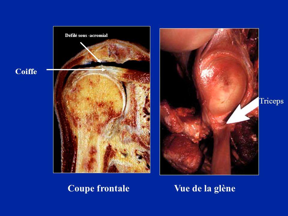 Préparation anatomique Vue des tendons de la coiffe séparés Vue de la glène avec la capsule et les tendons