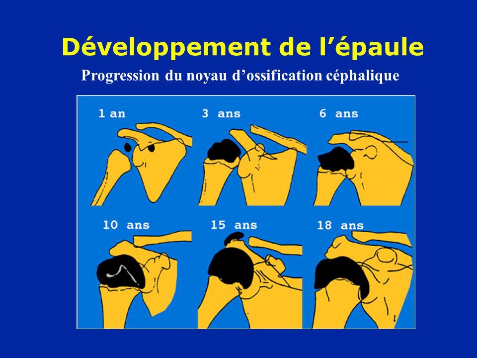 Développement de lépaule Progression du noyau dossification céphalique