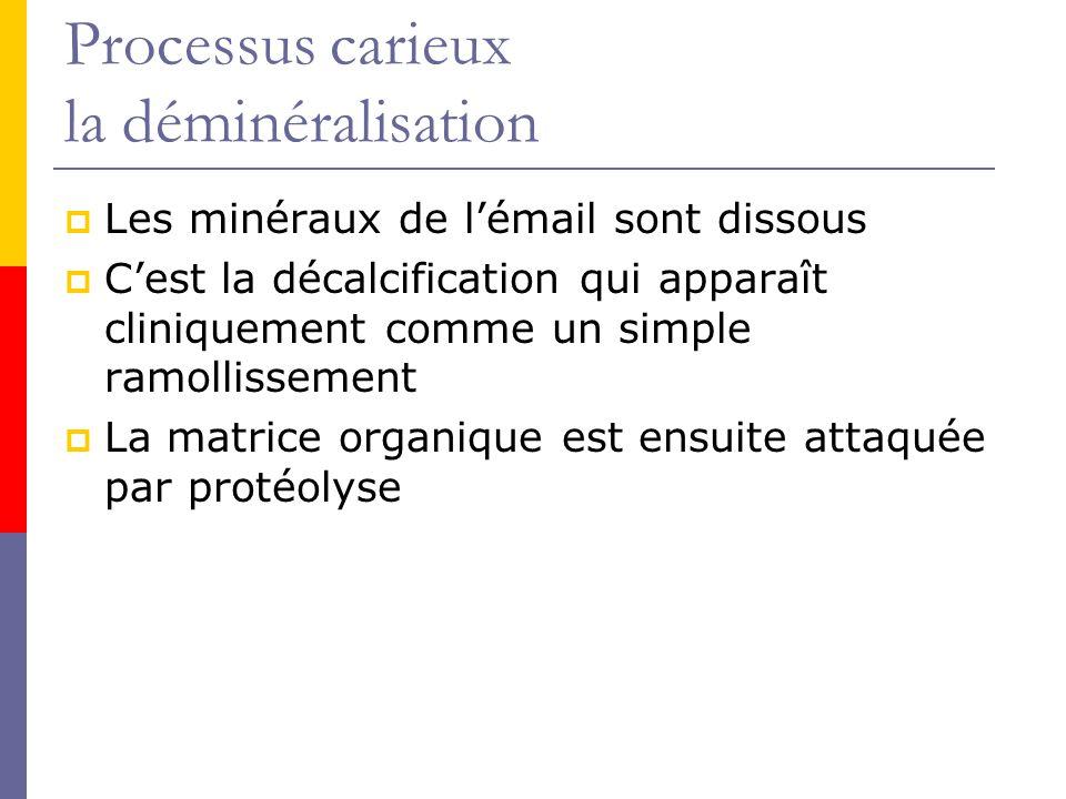 Processus carieux la déminéralisation Les minéraux de lémail sont dissous Cest la décalcification qui apparaît cliniquement comme un simple ramollissement La matrice organique est ensuite attaquée par protéolyse