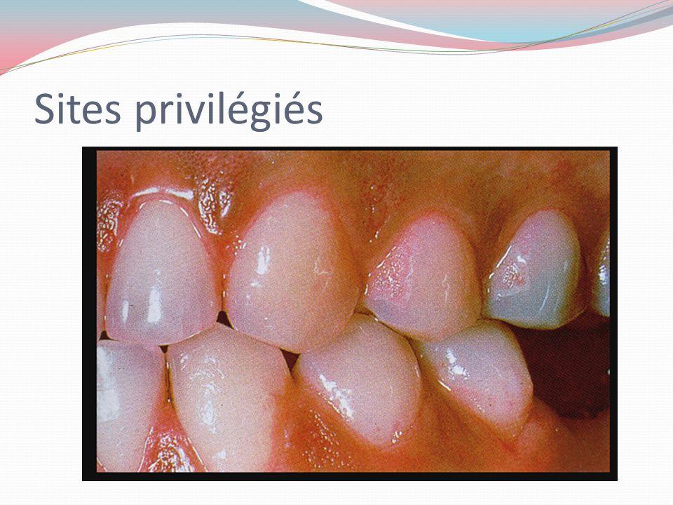 La plaque dentaire Comparaisons Origine Adhérence Forme et taille Microorganismes Plaque sous-gingivale Le fluide gingival Adhère à la pellicule sous