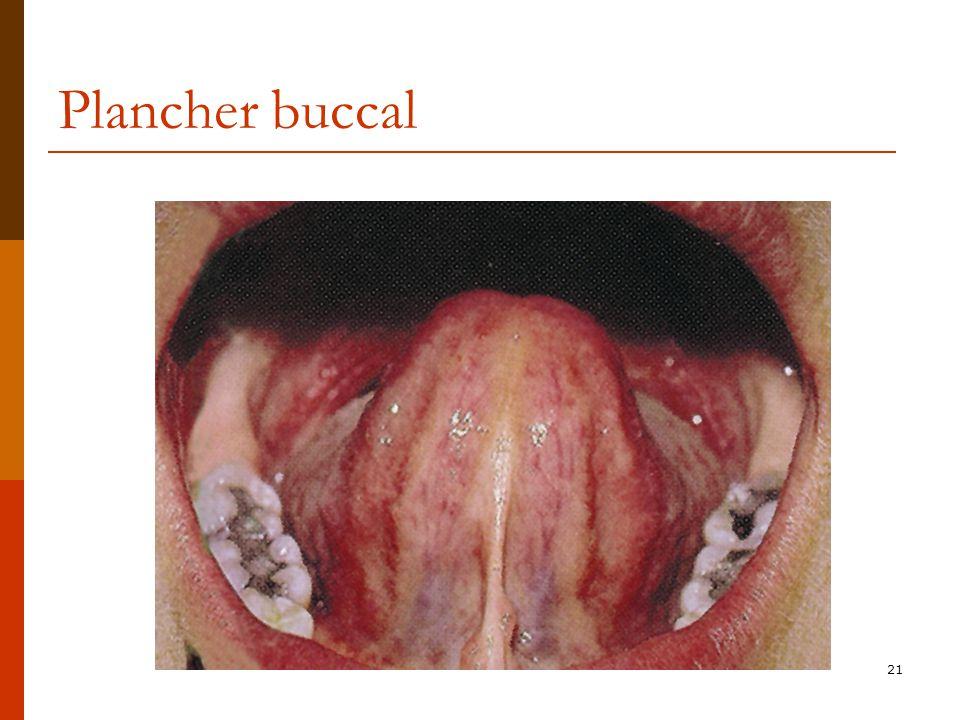 21 Plancher buccal