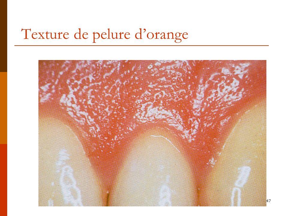 47 Texture de pelure dorange