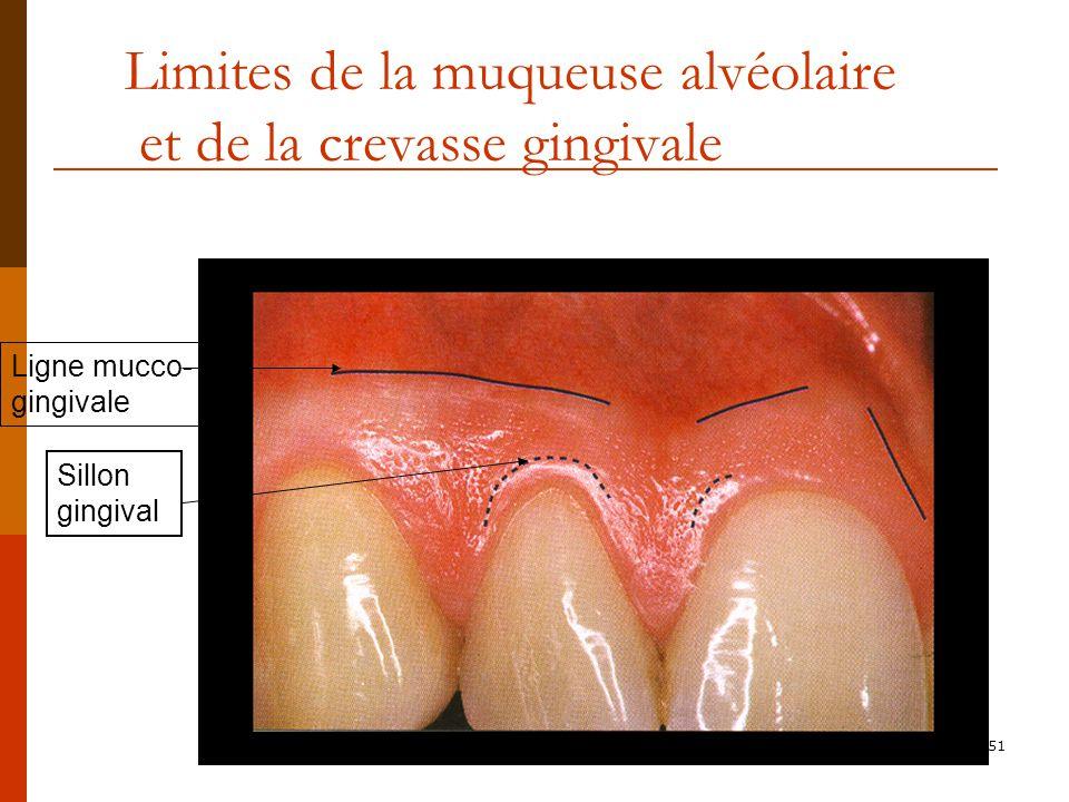 51 Limites de la muqueuse alvéolaire et de la crevasse gingivale Sillon gingival Ligne mucco- gingivale