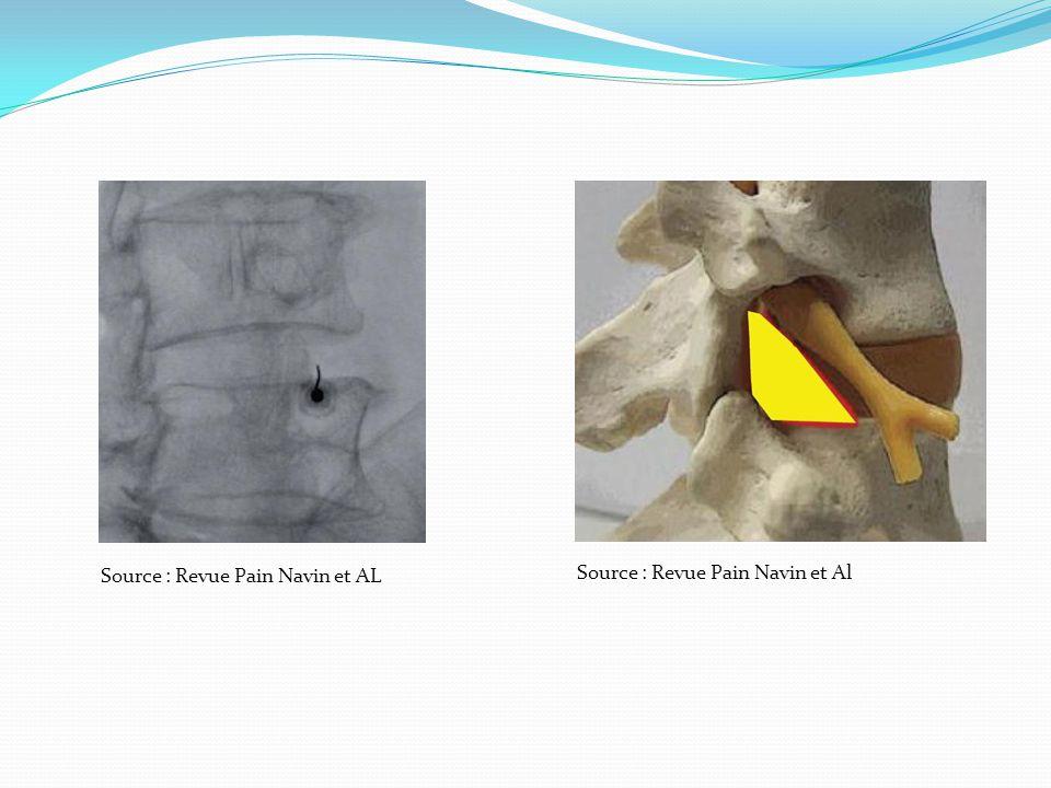 Source : Revue Pain Navin et AL Source : Revue Pain Navin et Al