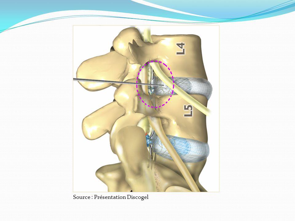 Bases anatomiques Foramen : lartère radiculo médullaire est située à la partie supérieure du foramen au dessus de la racine au dessous du pédicule supérieur du foramen.