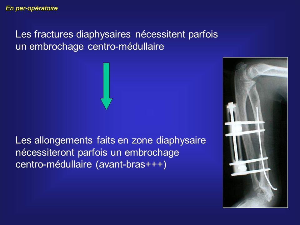 Les fractures diaphysaires nécessitent parfois un embrochage centro-médullaire Les allongements faits en zone diaphysaire nécessiteront parfois un emb