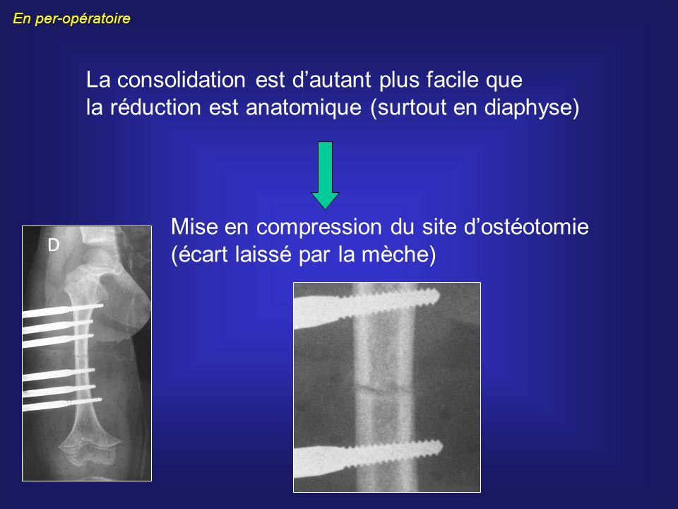 La consolidation est dautant plus facile que la réduction est anatomique (surtout en diaphyse) Mise en compression du site dostéotomie (écart laissé p