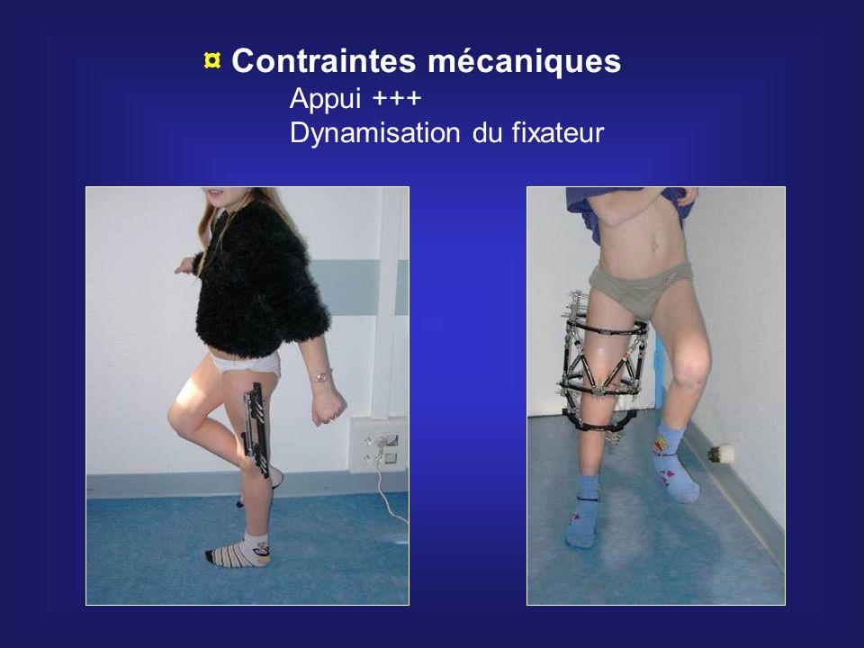 ¤ Contraintes mécaniques Appui +++ Dynamisation du fixateur