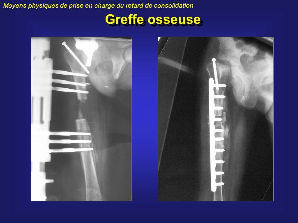 Moyens physiques de prise en charge du retard de consolidation Greffe osseuse