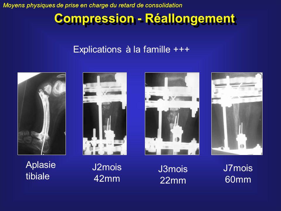 Compression - Réallongement Moyens physiques de prise en charge du retard de consolidation Explications à la famille +++ Aplasie tibiale J2mois 42mm J