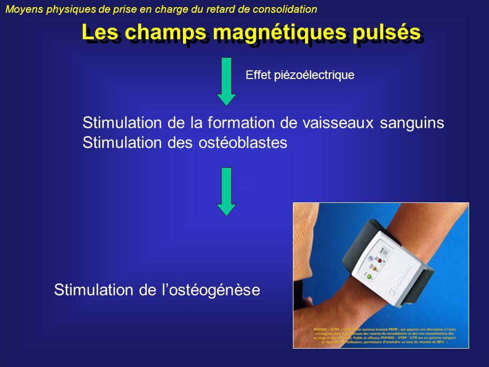 Moyens physiques de prise en charge du retard de consolidation Les champs magnétiques pulsés Stimulation de la formation de vaisseaux sanguins Stimula